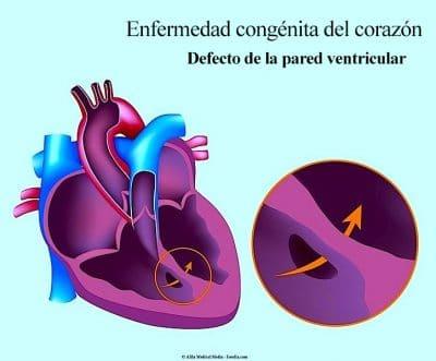 enfermedad-congénita-del-corazón
