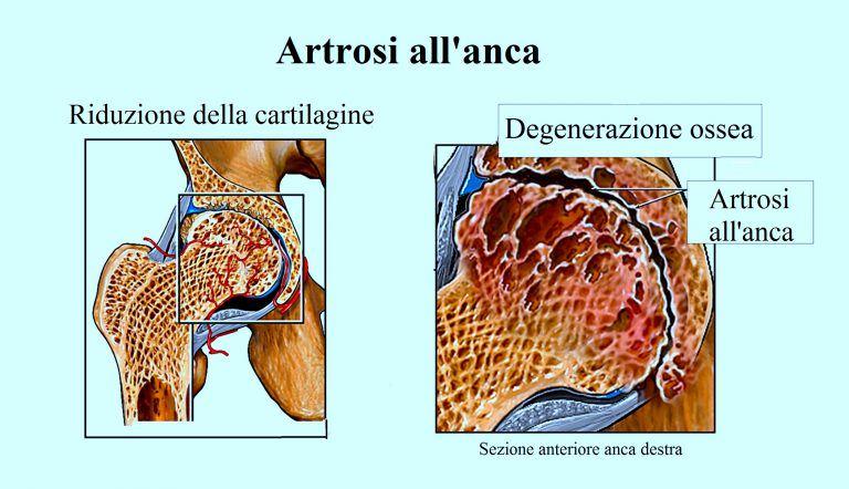 cadera, articulación, artrosis