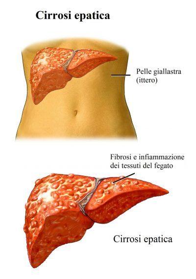 cirrosi-epatica-400x569
