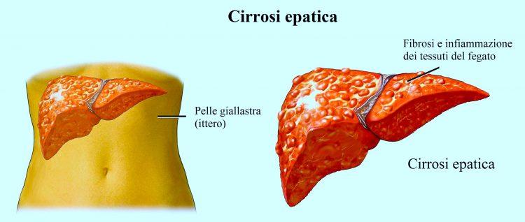 cirrosi-epatica-al-fegato-750x318