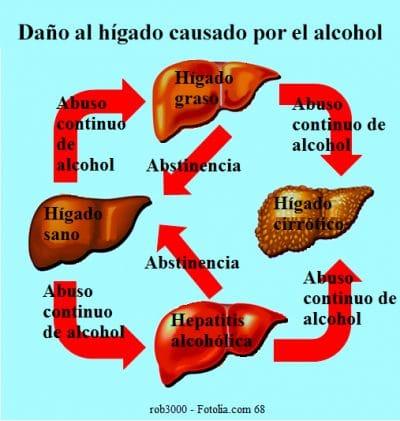 Cirrosis hepática, alcohol, causas, trasplante