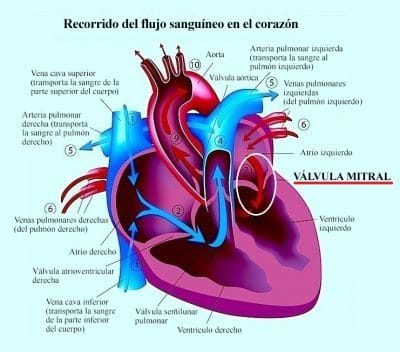 insuficiencia-mitral