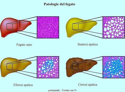 Hepatitis C, hígado, cirrosis, fibrosis