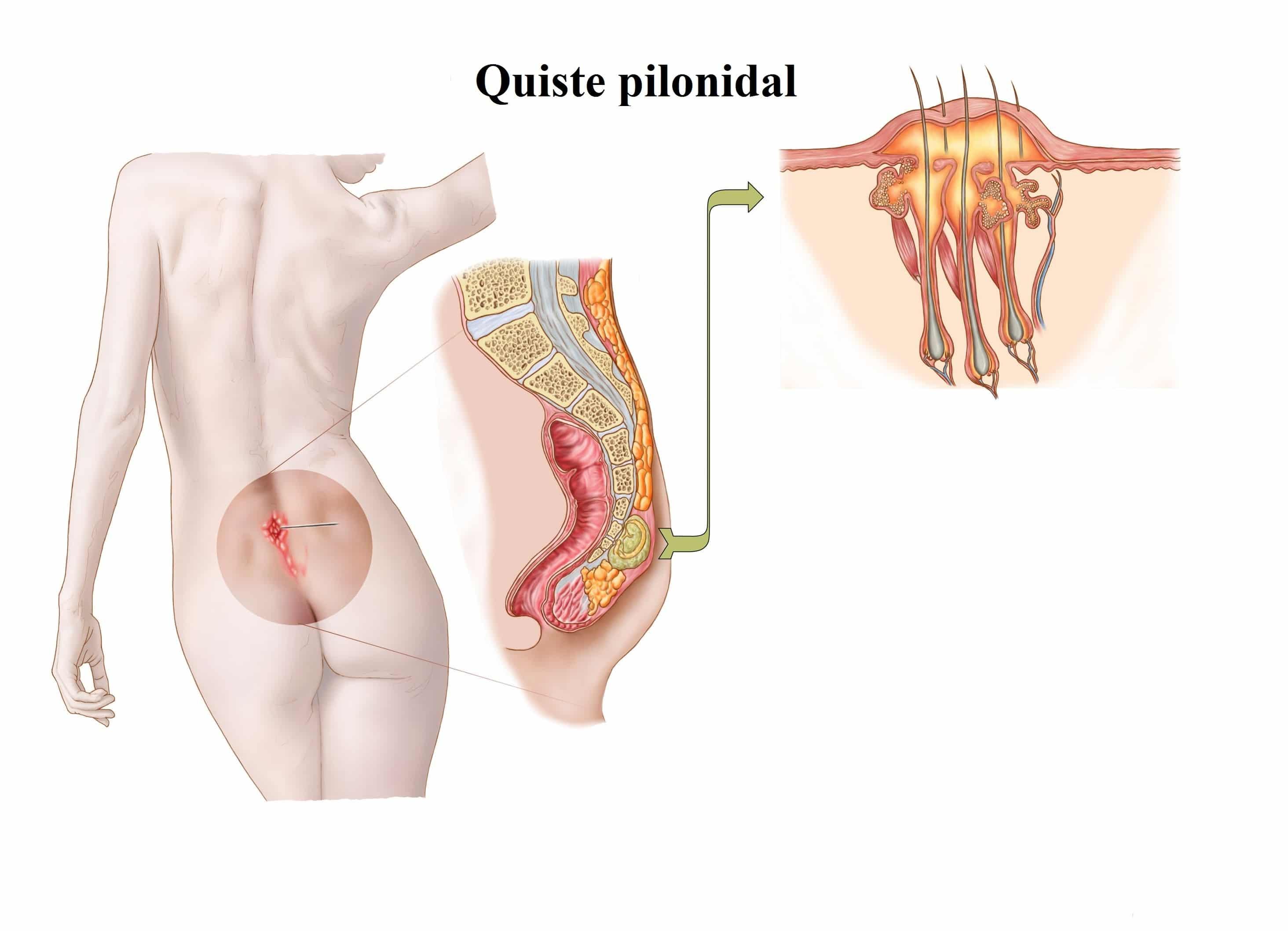 quiste-pilonidal