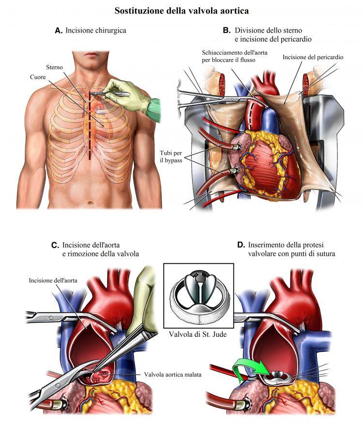 sostituzione-valvola-aortica-intervento-chirurgico-750x877