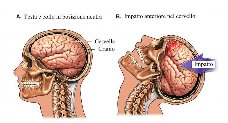 trauma-cranico-768x414