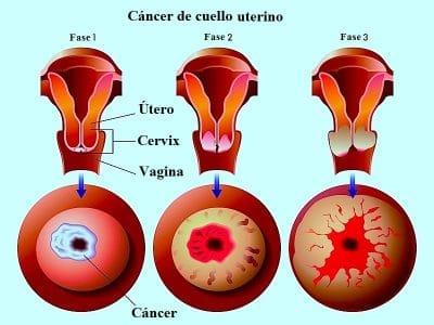 carcinoma cervical