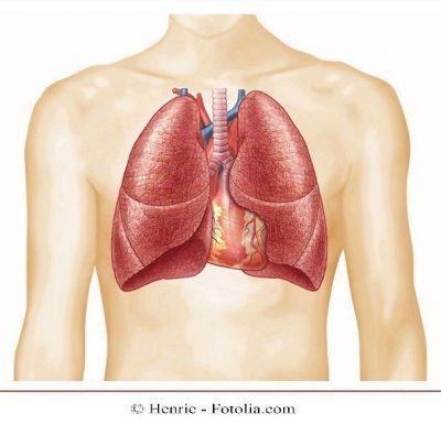 pulmón, neumonía, dolor en el pecho