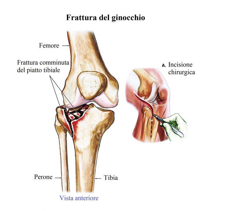 fractura-de-la-rodilla