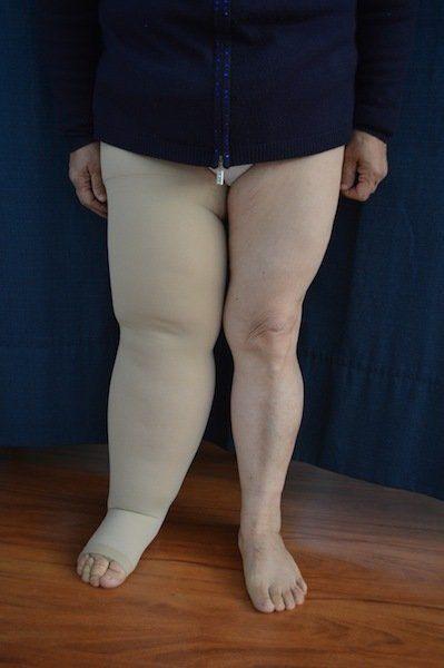 linfedema, hinchazón, pierna, medias elásticas, pesadez