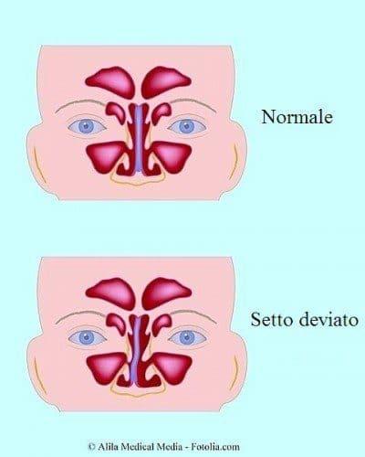 desviación-del-tabique-nasal