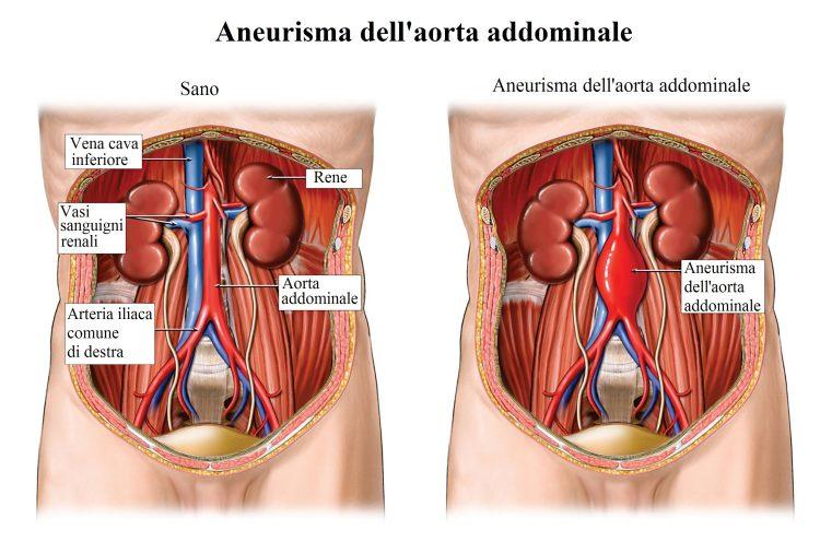 aneurisma-aórtico