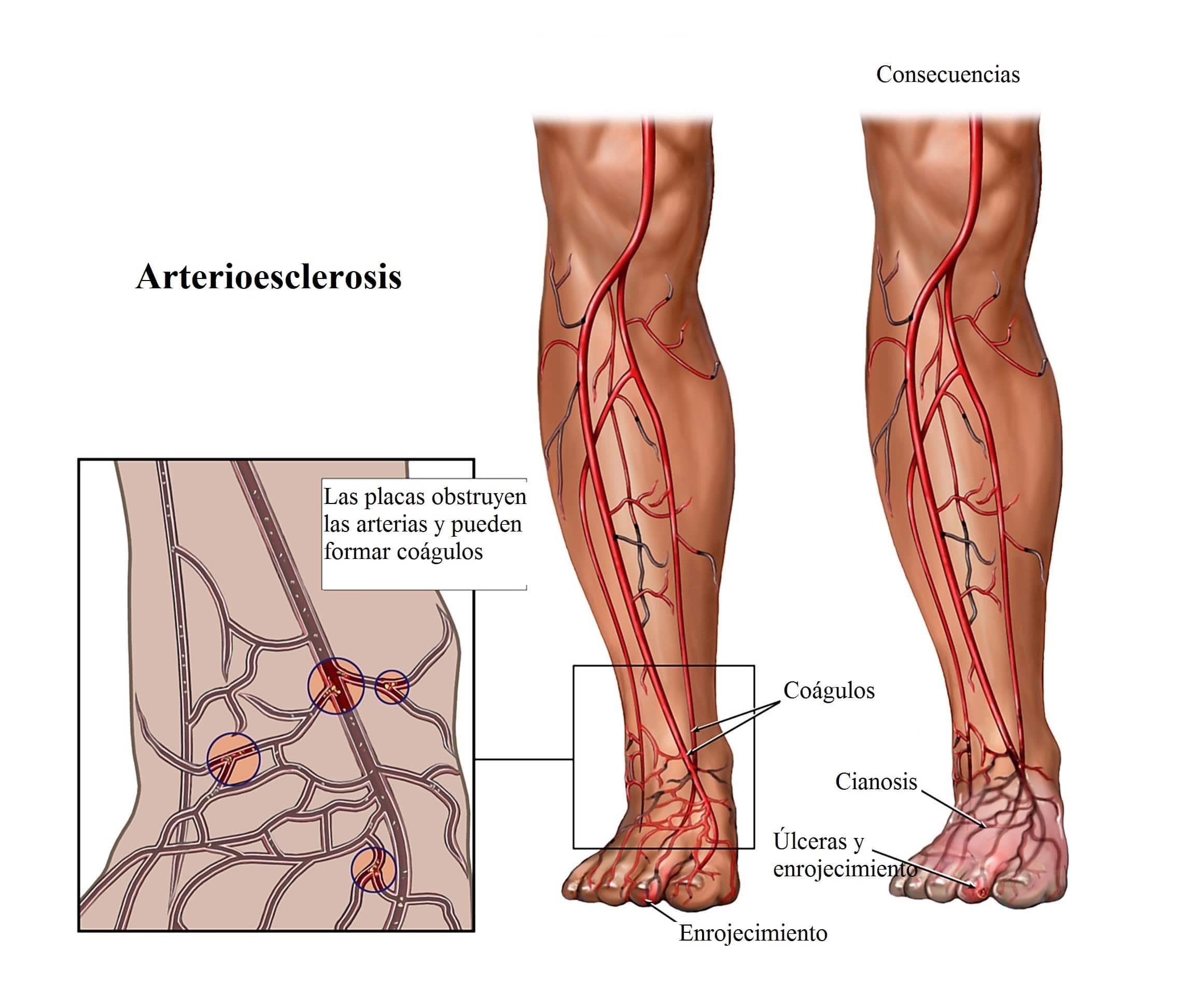 arterioesclerosis-piernas-cianosis-venas
