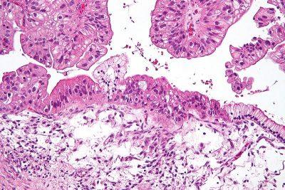 células-de-cáncer-de-ovario