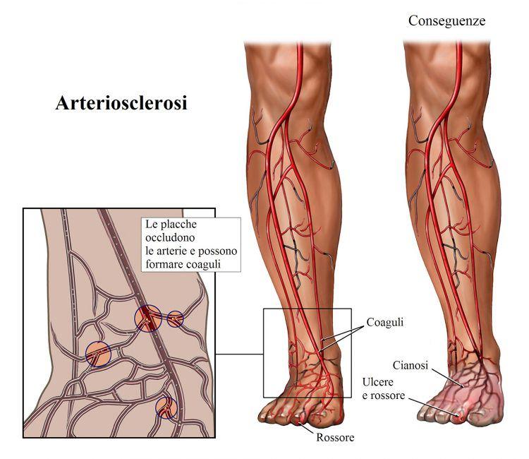 circulación, sangre, pies, piernas