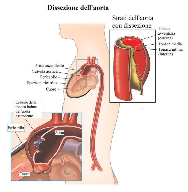 disección-aórtica