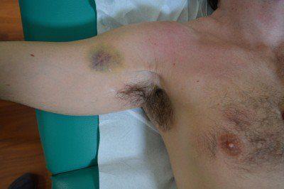hematoma, desgarro, pectoral