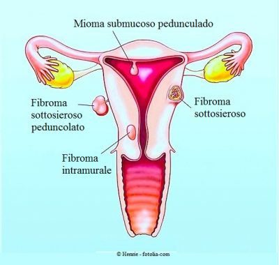 fibroma-uterino