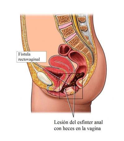 fístula-rectovaginal
