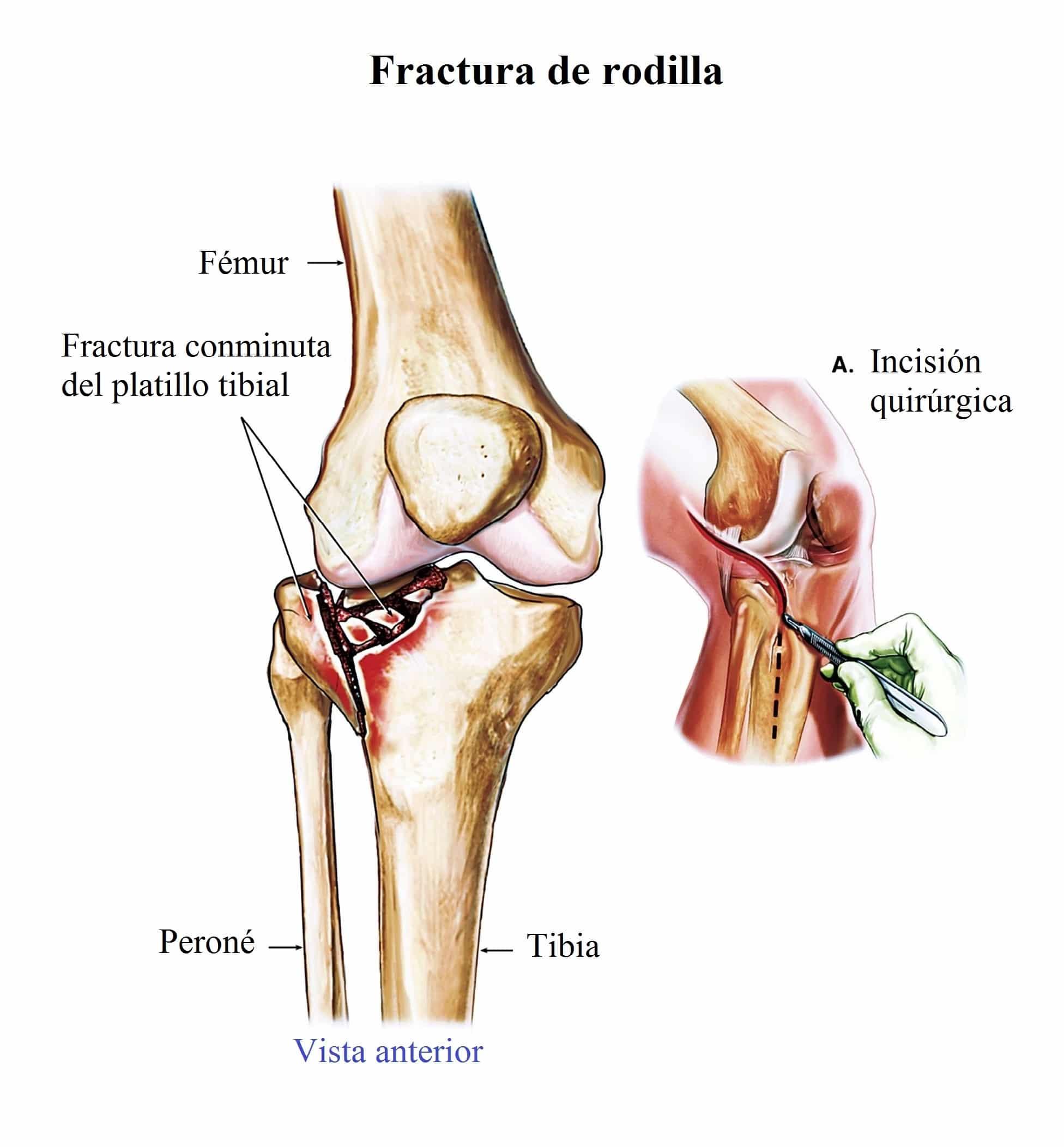 hinchazon de rodilla izquierda