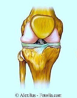 rodilla hinchada, hinchazón, inflamación