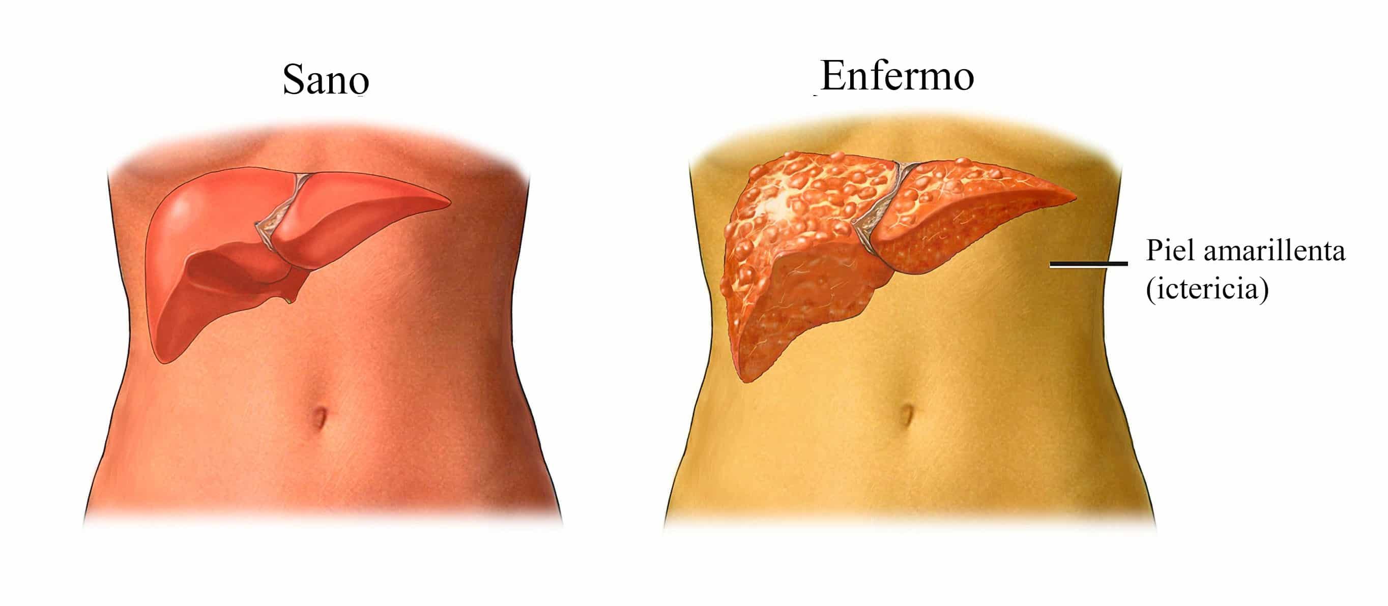 higado-ictericia-tumor