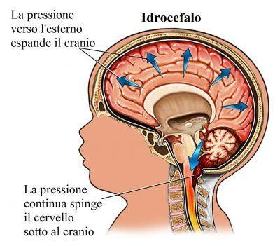 hidrocefalo