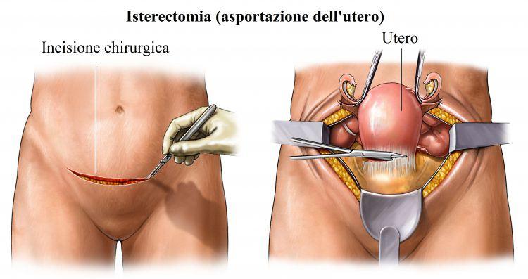 histeroctomía