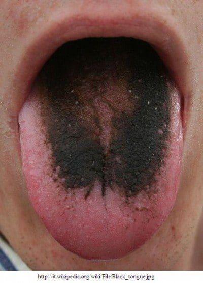 lengua negra, vellosa
