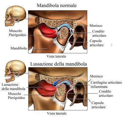 articulación-témporo-mandibular