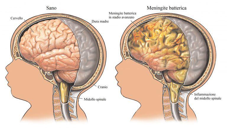 meningitis-fiebre