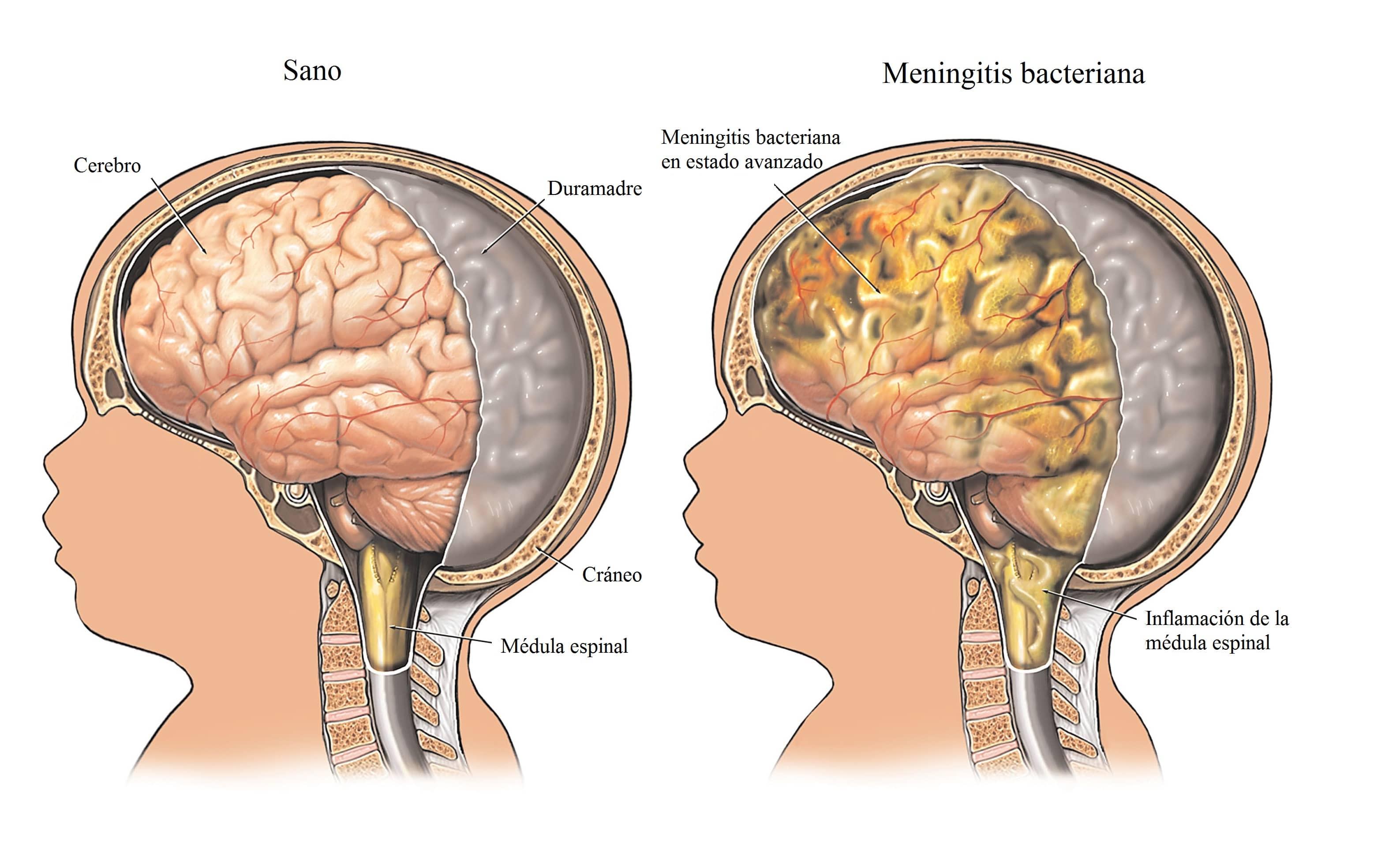 meningitis-cerebro-fiebre