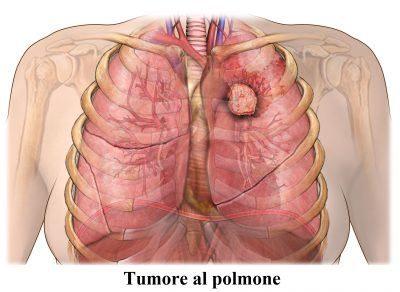 metastasis-pulmones