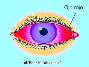 Ojos rojos, rosas, conjuntivitis, alergia, infección