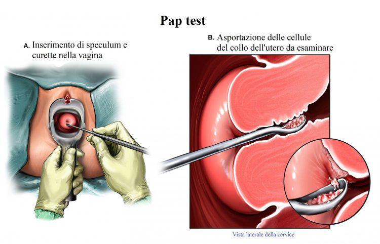 prueba-de-Papanicolaou