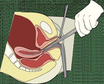 Legrado, procedimiento, aborto, embarazo, pérdidas, sangrado, hemorragia
