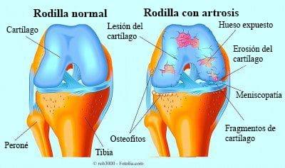 rodilla-hinchada-e-inflamada