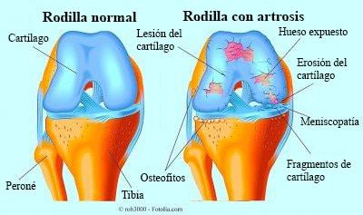 Rodilla hinchada inflamada dolor sin golpe morada - Dolor en la parte interior de la rodilla ...