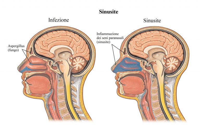 sinusitis- inflamación