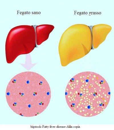 Hígado graso, esteatosis hepática, lípidos, acumulación, dieta.