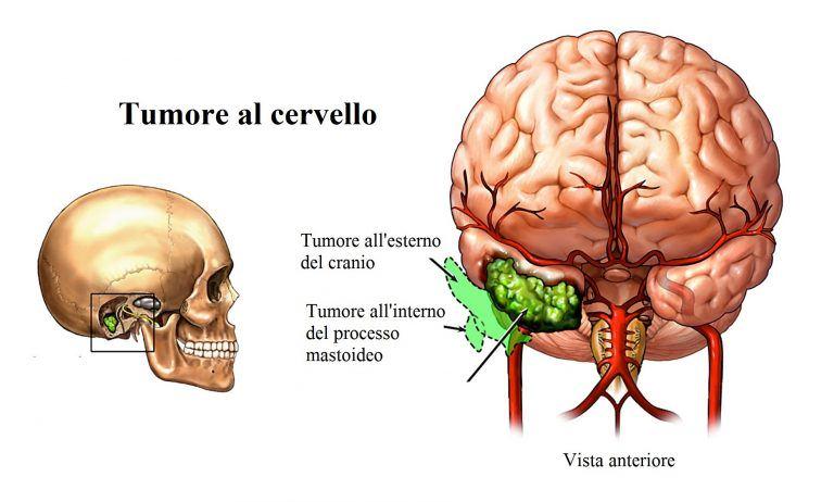 Cáncer-de-cerebro