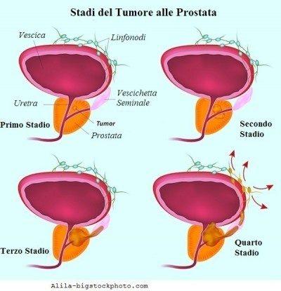 etapa, cáncer de próstata
