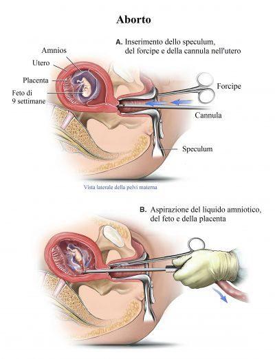 aborto, feto, bebé, operación, legrado