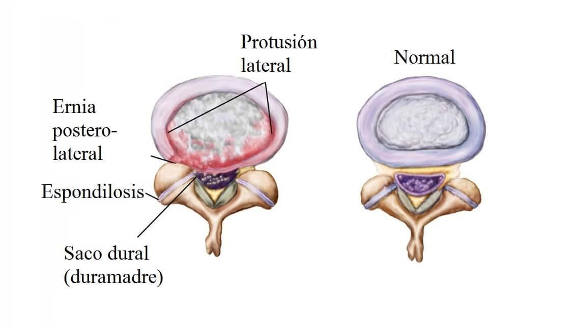 Remedio natural para curar hernia de disco