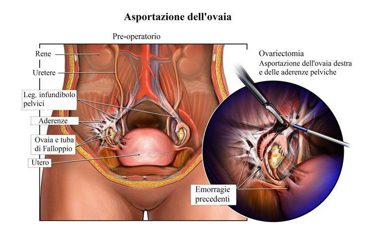 extirpación de los ovarios