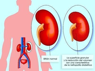 Foto: bloqueo, renal, nefropatía, diabética