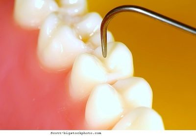 Caries, dientes, dental