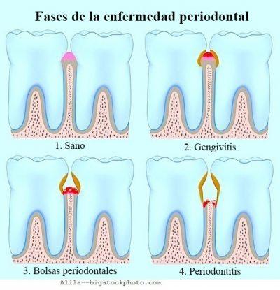 Tratamiento para la periodontitis, etapas-tratamiento-para-la-periodontitis