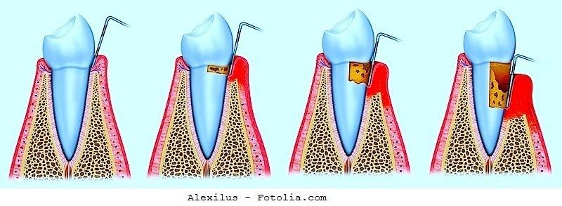 Periodontitis, tratamiento, causas