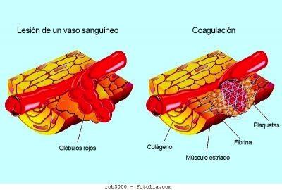 hematoma, músculo, sangre